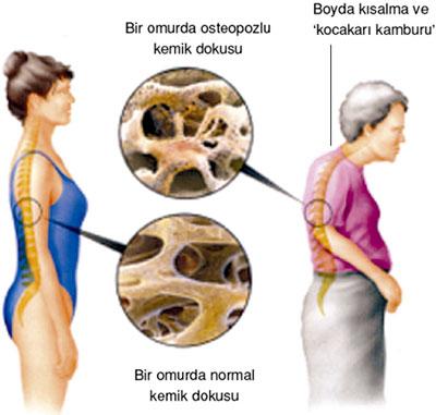 kemik erimesi neden olur